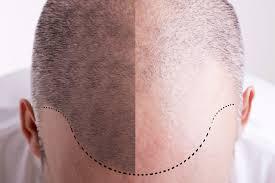 hair transplant denver